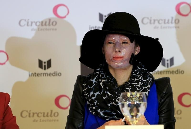 Natalia Ponce de Leon listens to a question during a news conference at El Tiempo newspaper in Bogota April 16, 2015. Ponce de Leon is one of 900 victims, 540 of them women, who have been attacked with acid in Colombia. She suffered injuries to her face and body an her story is told in a book featured at the 28th annual international book festival in Bogota.   REUTERS/Jose Miguel Gomez